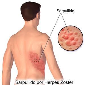 herpes en la espalda: