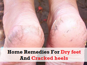 Home Remedies For Dry feet and Cracked heels