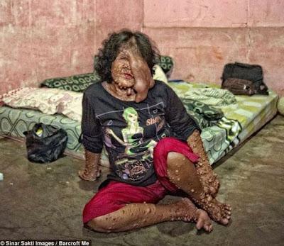Chuyện lạ người phụ nữ mọc hàng trăm khối u khắp người.