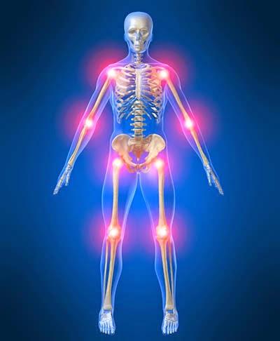 Thảo dược điều trị bệnh đau nhức xương khớp hiệu quả