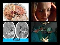 Beyin Tümörü Belirtileri,