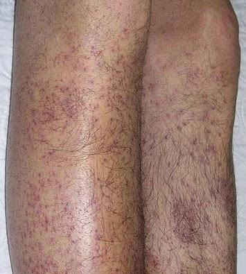 bintik merah di kaki