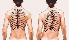 penyakit tulang bengkok atau skoliosis adalah suatu penyakit yang