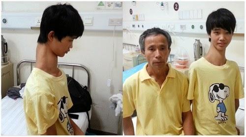 Fu Wengui Remaja China Punyai Leher Terpanjang di China