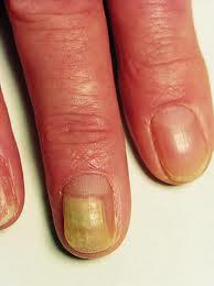 svamp i negle på hænder