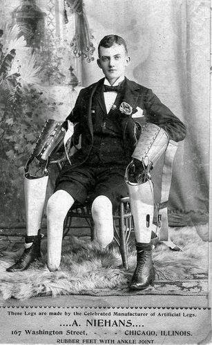 Vintage black and white photo of young man double leg amputee, seated, with his prosthetic legs off and displayed on either side of him