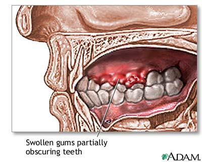 Periodontal Disease Symptoms