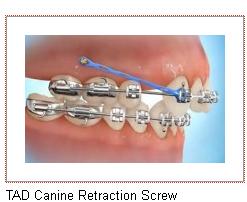 Gilbert AZ Orthodontist Braces TAD Retraction Screw