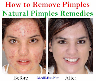 how to clear pimples naturally