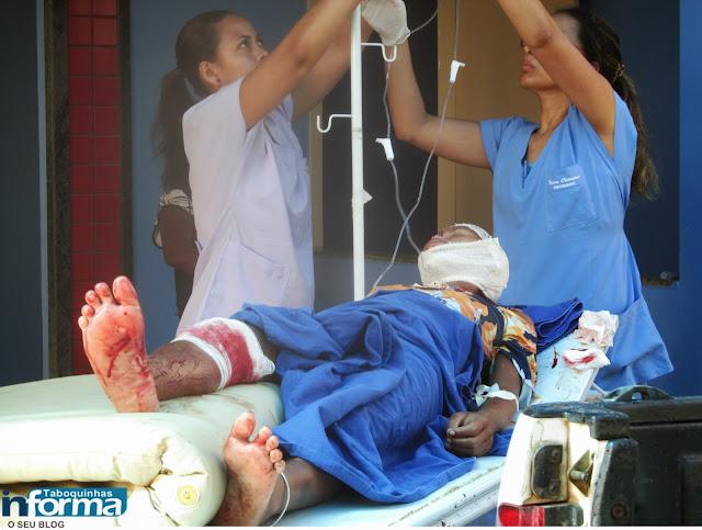 Mulher é agredida com golpes de facão em Taboquinhas e fica em estado grave.