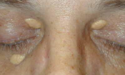 White Bumps Under Eyes - New Health Advisor