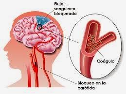 Derrame cerebral es 3era causa de muerte y mata unos 7 millones de personas al año