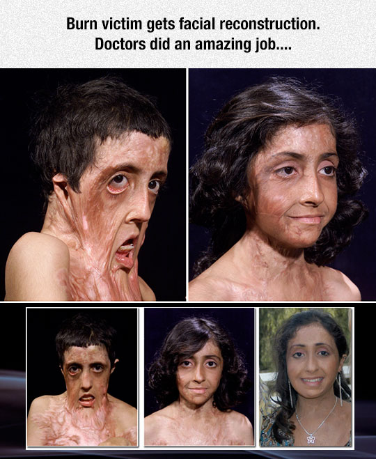 Burn victim gets facial reconstruction, doctors did an amazing face restructure job | Amazing facial reconstruction