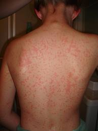strep rash itch #10