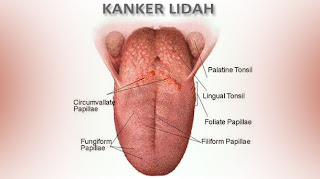 Kanker Lidah