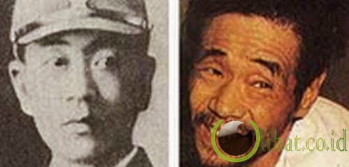 Shoichi Yokoi: bersembunyi selama 28 tahun setelah PD II