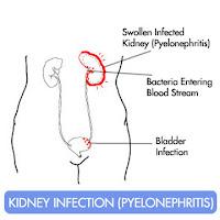 obat alternatif infeksi saluran kemih