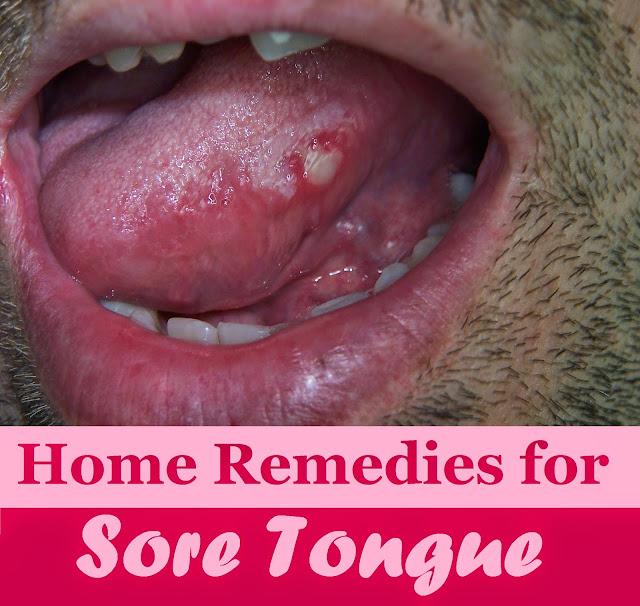 Natural Remedy Ulcer Tongue