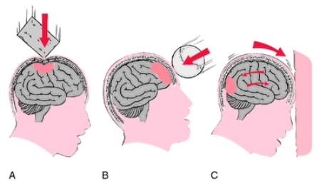 Hati-hati, Gegar Otak Bisa Menjadi Pemicu Parkinson