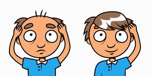 baldness stop castor oil