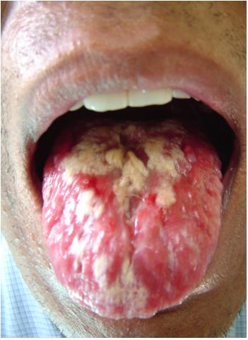 Infected Uncircumcised Penis 45
