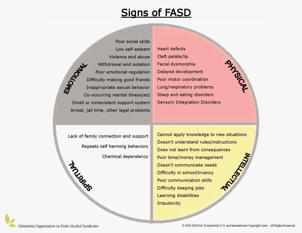 Fasd Support And Understanding Fasd Signs And Symptoms