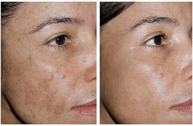 Hydroquinone Cream — The Dermatology Review