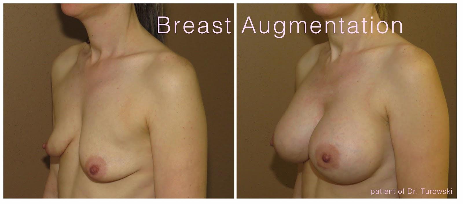 Brustvergrößerung Brust-Augmentation,