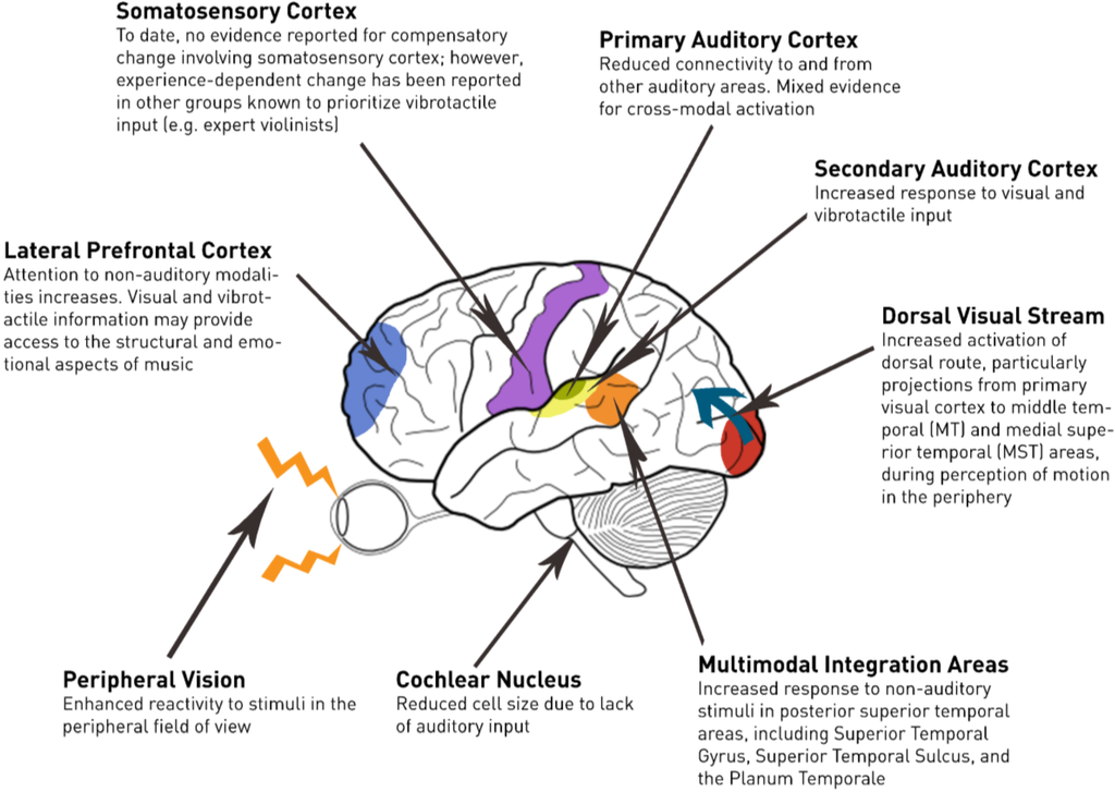 Smart Lab Blog Plasticity In The Deaf Brain Effects On