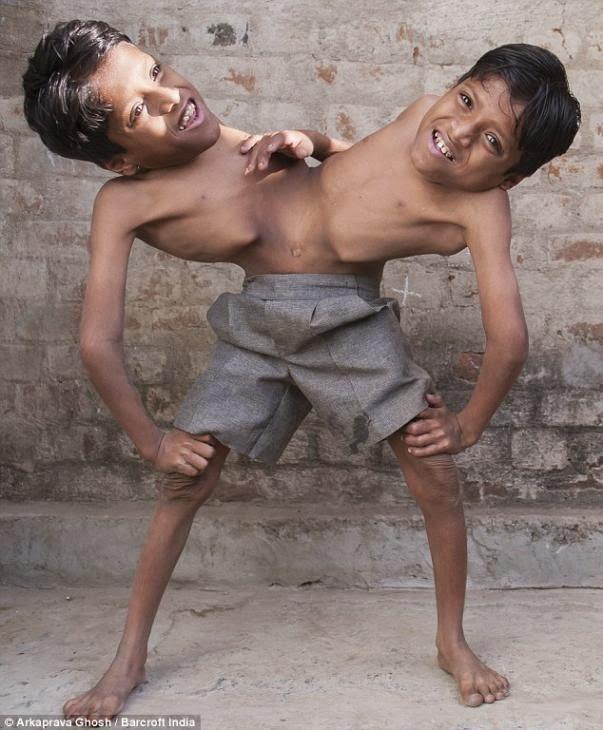 hermanos siameses