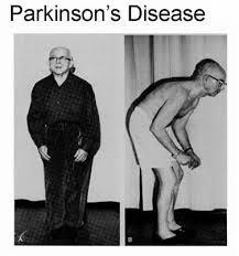 Bahaya Penyakit Parkinson