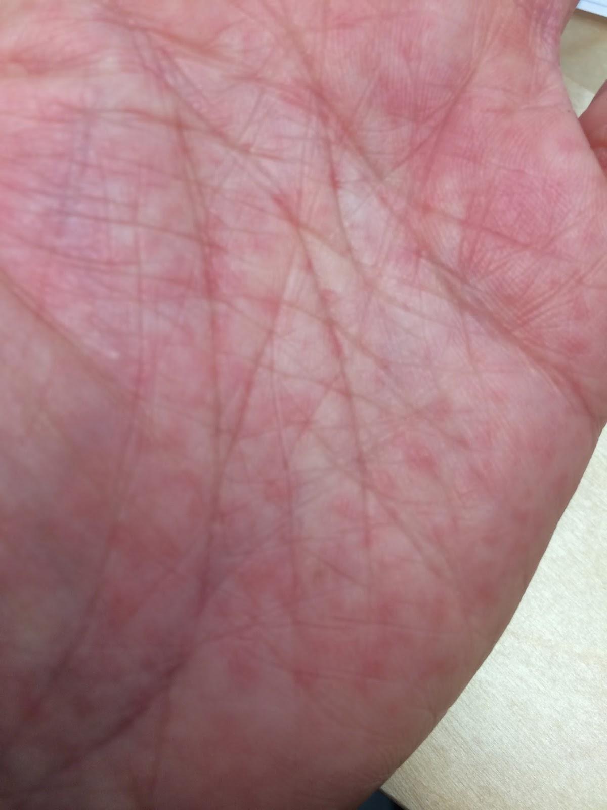 kløende håndflader