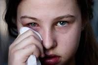 Tips Cara Mengobati Sakit Mata Secara Alami