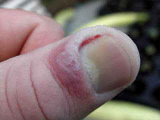 picture of thumb affected by chronic paronychia and Fungal (candidal) paronychia