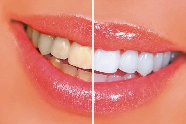 اصفرار الاسنان