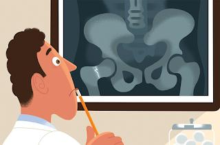 Fatores de Risco da Osteoporose
