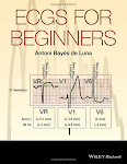Ecgs For Beginners GRATIS!