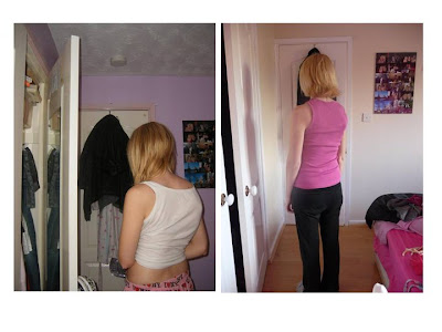 The difference in my rib hump before and after scoliosis surgery
