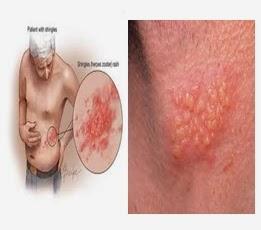 cara menyembuhkan herpes dengan cepat