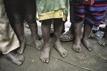 A escandalosa desigualdade mundial