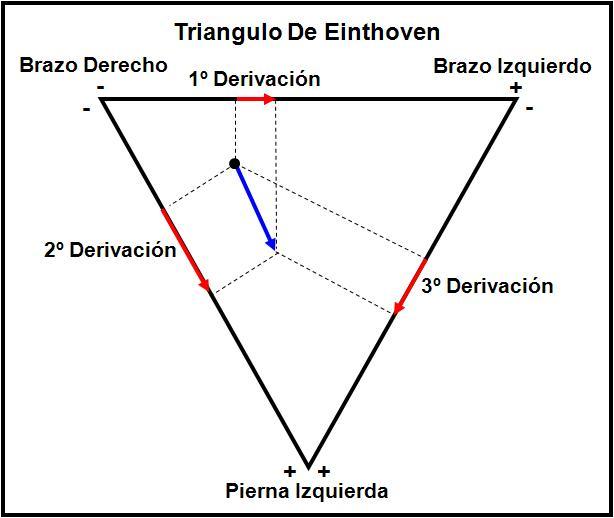 Triángulo de Einthoven | Medico en incubación