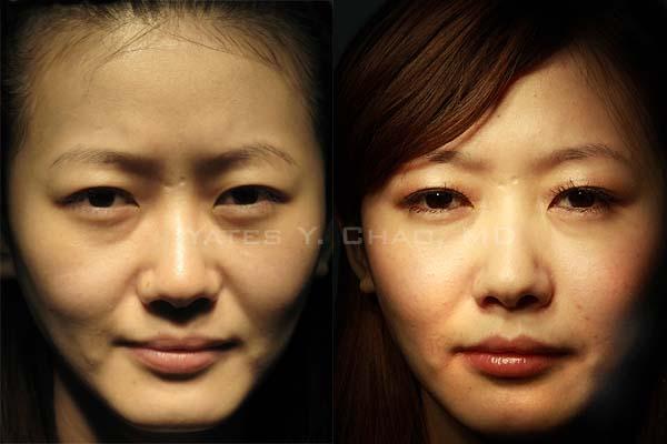 Sculptra PLLA 3D聚左旋乳酸 塑然雅 young woman