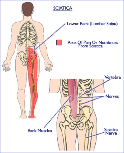 Aching Legs - Causes and Treatment