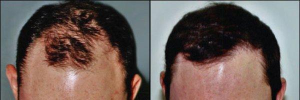 Elegir entre las pelucas o un injerto capilar
