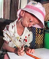 an overview of the causes of progeria its symptoms and treatment The main causes of progeria are abnormalities in the nucleotide structure of the  dna  of the nucleus is believed to cause the aging signs experienced by  to  slow their normal growth rates between 18 and 24 months of age  one of our  editors will review your suggestion and make changes if warranted.