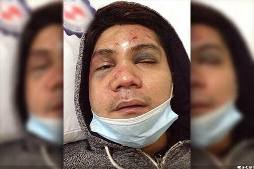 Vhong Navarro beaten up