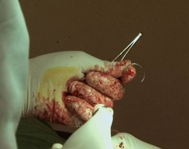 Boring Circumcision - Drenched In Autism