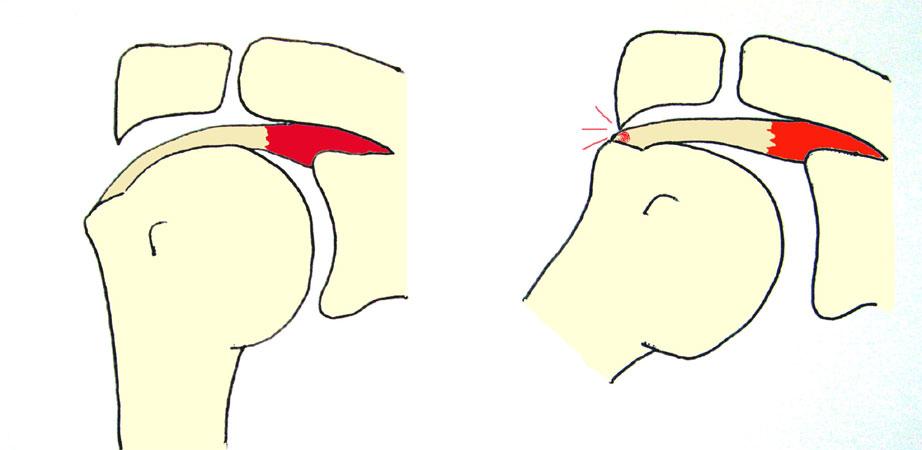 oorzaak slijmbeursontsteking schouder