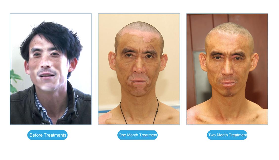 Chines Medicine Treatment For Vitiligo News Cure Of