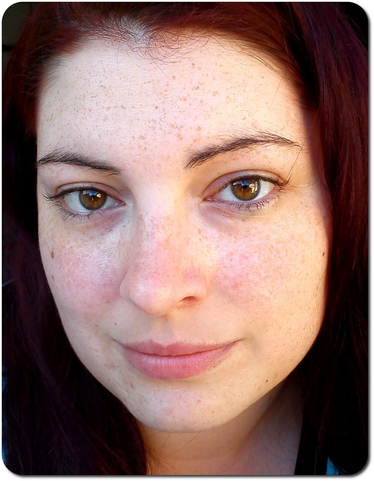Der Pigmentfleck im Augenlidwinkel